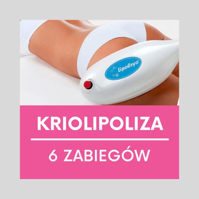 "=""Kriolipoliza"